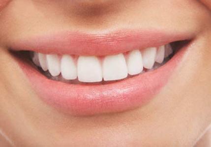 Resultado de imagen de estética dental